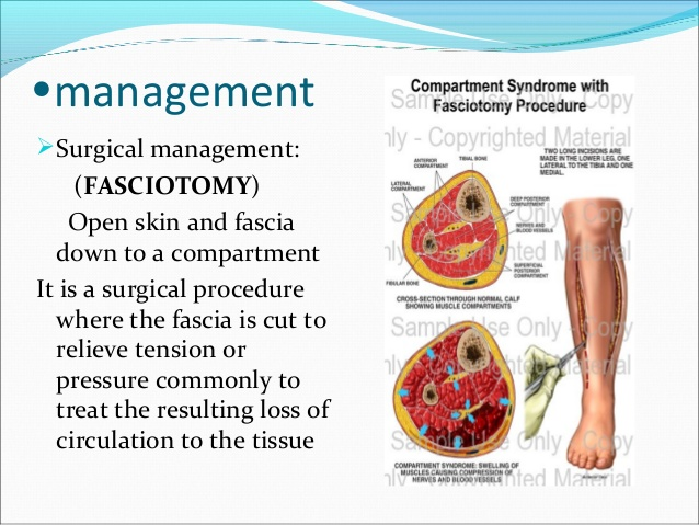 5-2-compartment-syndrome-copy